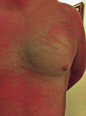 Treatment for fighting Hep C had the side effect of a red rash