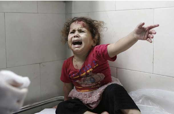 A little girl cries as medics attend to her injuries at al-Shifa hospital, Gaza City (18 July). UNICEF/Eyad El Baba