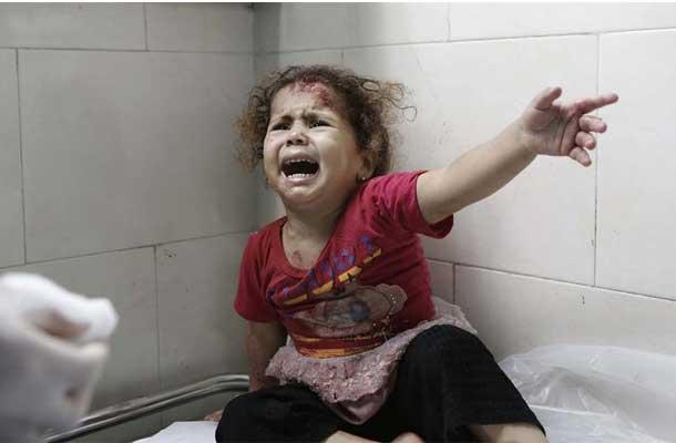 A little girl cries as medics attend to her injuries at al-Shifa hospital, Gaza City (18 July). UNICEF/Eyad El Baba