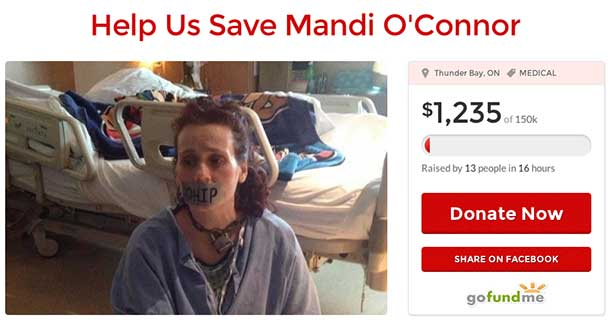 Mandy O'Connor needs life saving surgery that OHIP is saying they won't cover