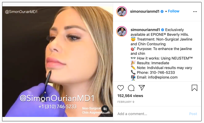 Non-surgical jawline and chin contouring