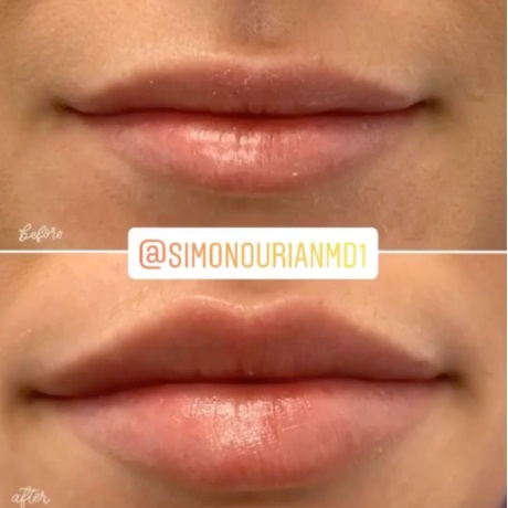 Lip Augmentation by Dr. Simon Ourian